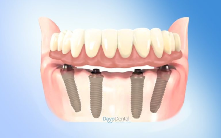 all on 4 dental implants in Brooksville